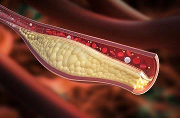 Χοληστερίνη: Νέο αποτελεσματικό φάρμακο