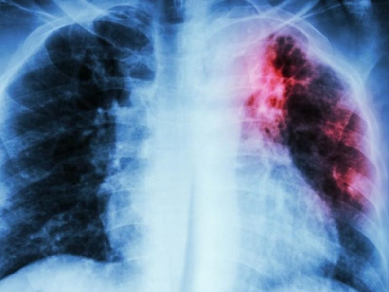 ΕΠΕ: Η φυματίωση δεν μας ξεχνά