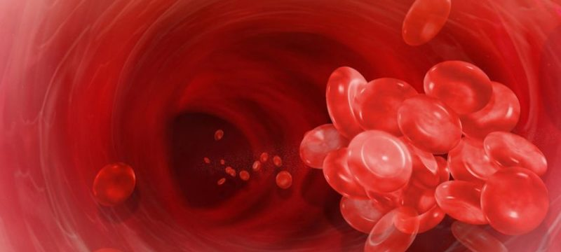 blood_thrombosis23