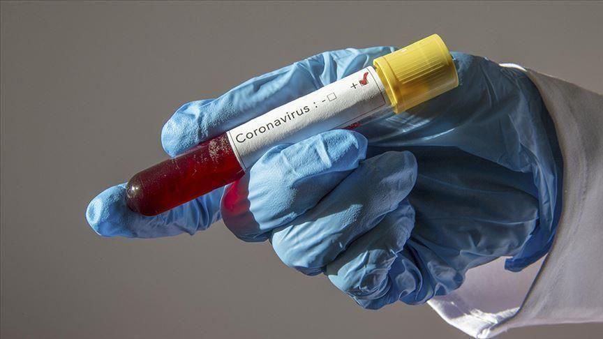 Η χρήση χρόνιας ανοσοκατασταλτικής θεραπείας δεν φαίνεται να επηρεάζει την έκβαση της COVID-19