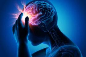 Starke Kopfschmerzen – Migräne – Medizinische Illustration – 3D Rendering