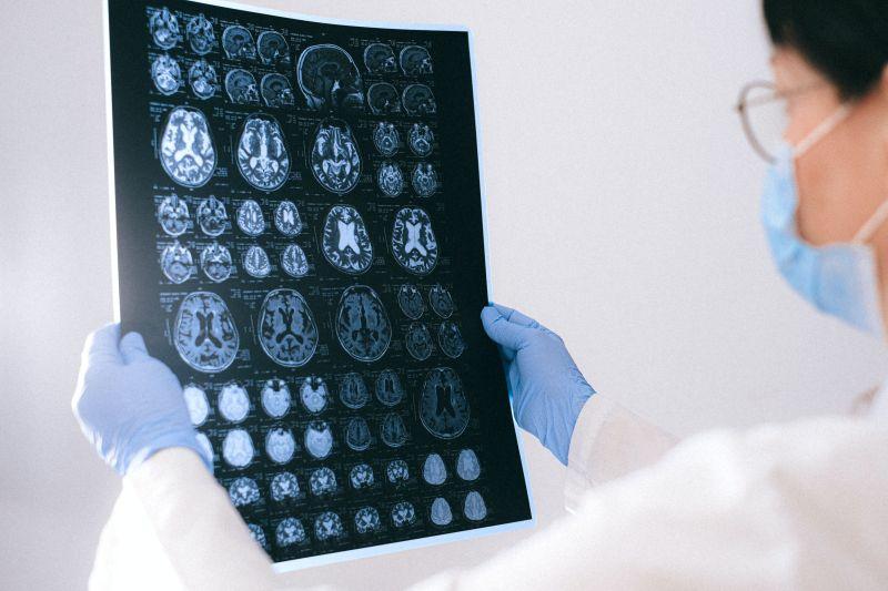 Θρόμβωση φλεβωδών κόλπων εγκεφάλου και θρομβωτικά επεισόδια μετά από εμβολιασμό έναντι της νόσου COVID-19